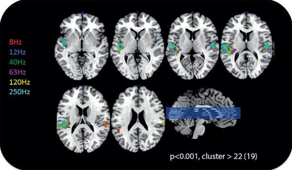 Scan aktivitas otak terhadap suara 8 Hz